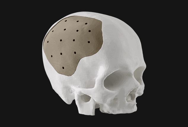 An experimental, biocompatible cranial implant.